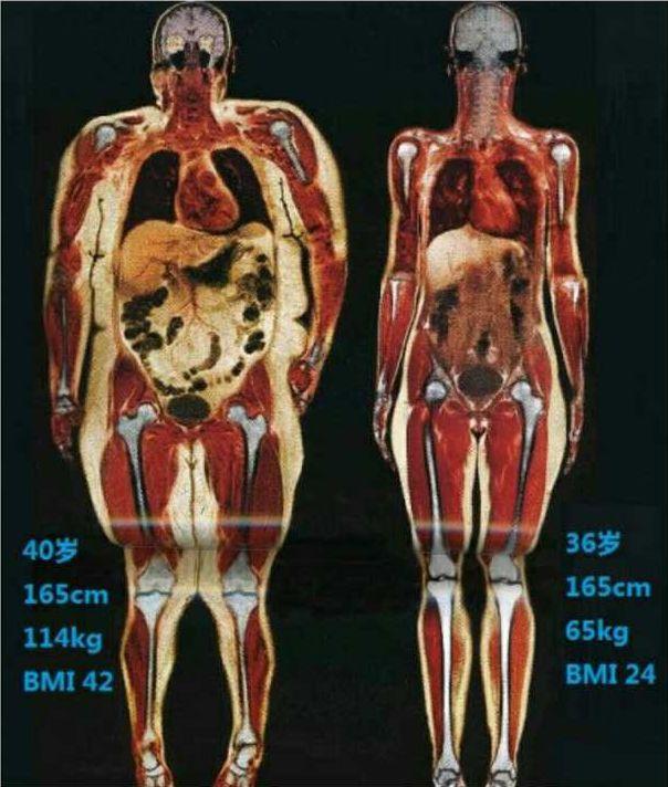 要命的肥胖并发症!手里的鸡腿突然就不香了!