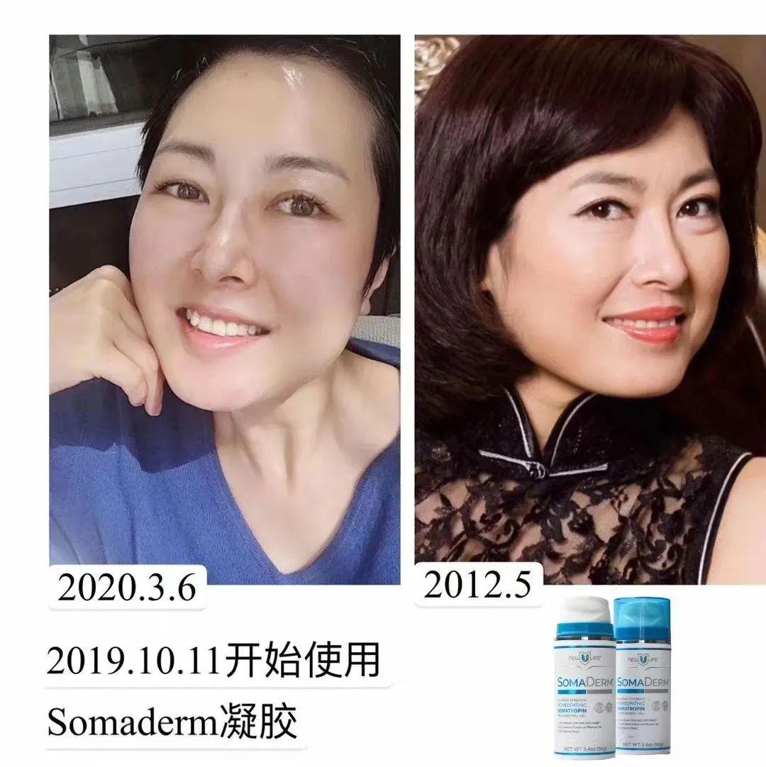 #SOMADERM#年轻态、减肥瘦身、淡斑祛皱、黑发案例